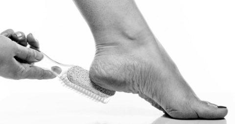 Kloven voeten - Expertisecentrum Voet & Beweging