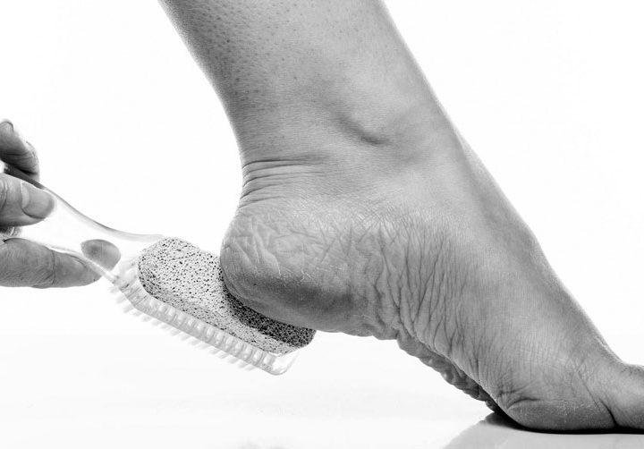 3 Tips tegen kloven in voeten