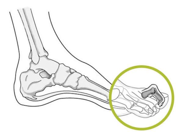 Hamerteen - Expertisecentrum voet & beweging