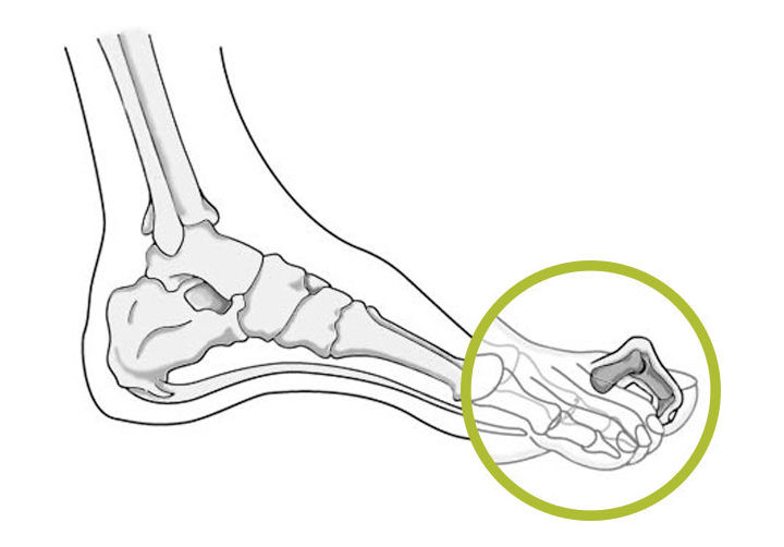 De hamerteen: tenenkrommend pijnlijk